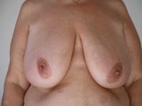 bryster1