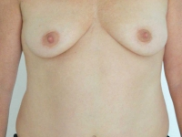bryster11