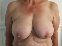 bryster12
