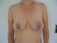 bryster14