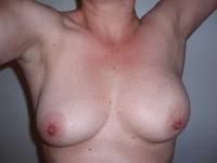 bryster16