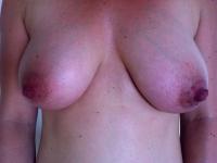 bryster18