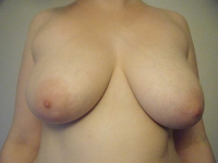 bryster24