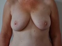 bryster25