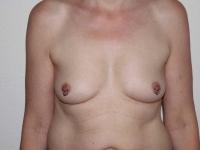 bryster27