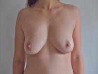 bryster31
