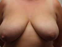 bryster33