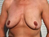 bryster36