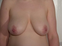 bryster42