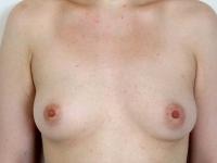 bryster6