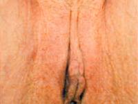 Kussomat_20110801_0016